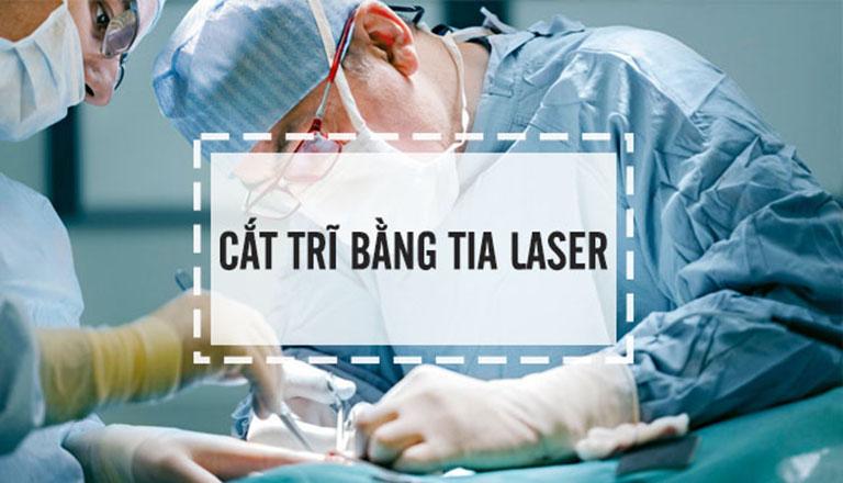 Cắt trĩ bằng tia laser là phương pháp được áp dụng khá phổ biến, mang lại hiệu quả điều trị cao