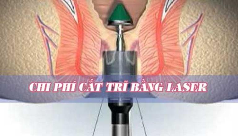 Chi phí cắt trĩ bằng tia laser còn phụ thuộc vào nhiều yếu tố khác nhau