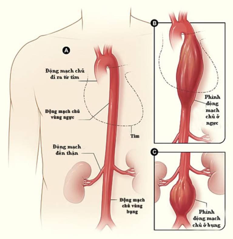 Phình động mạch chủ là hiện tượng vô cùng nguy hiểm có thể gây tử vong