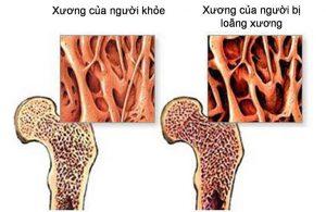 dấu hiệu loãng xương