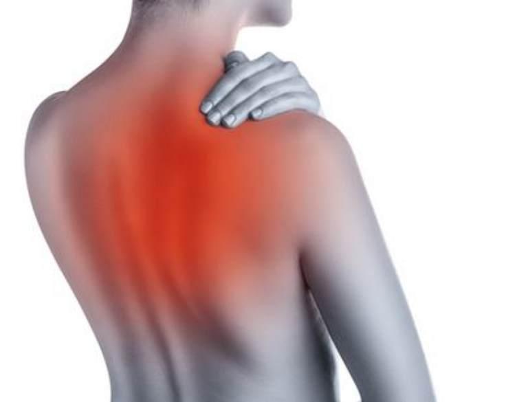 Đau thần kinh liên sườn cũng có thể là nguyên nhân gây đau dưới vai phải