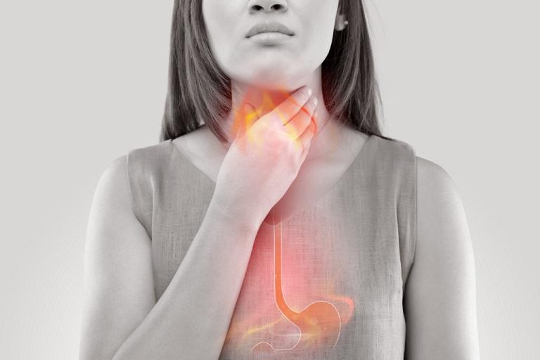 Đau rát cổ họng do trào ngược dạ dày thực quản
