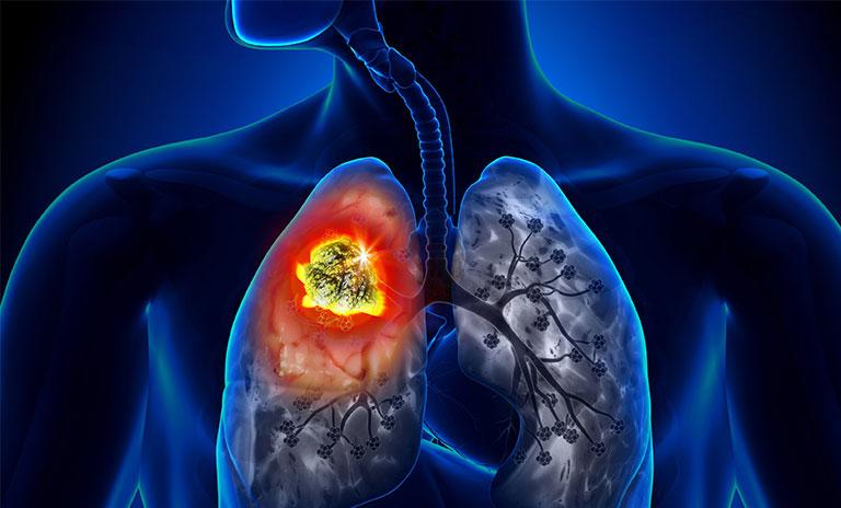 đau sau lưng vùng phổi phải do ung thư phổi