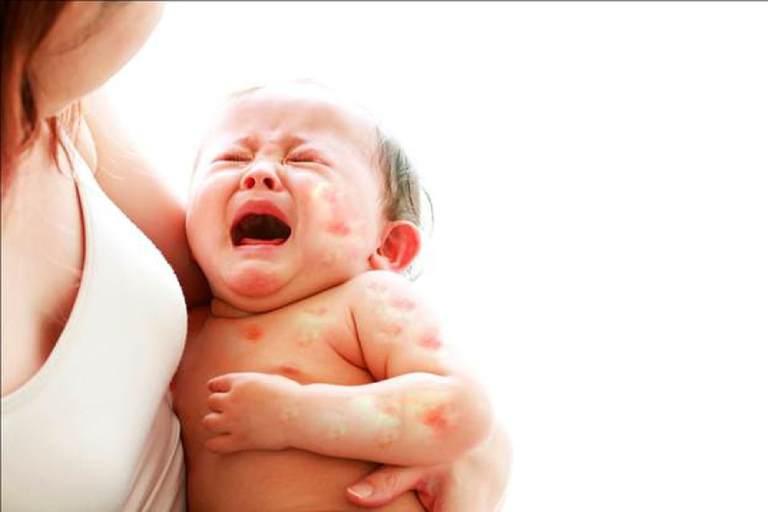 Dị ứng đạm sữa bò thường xảy ra ở trẻ dưới 3 tuổi đặc biệt là trẻ sơ sinh
