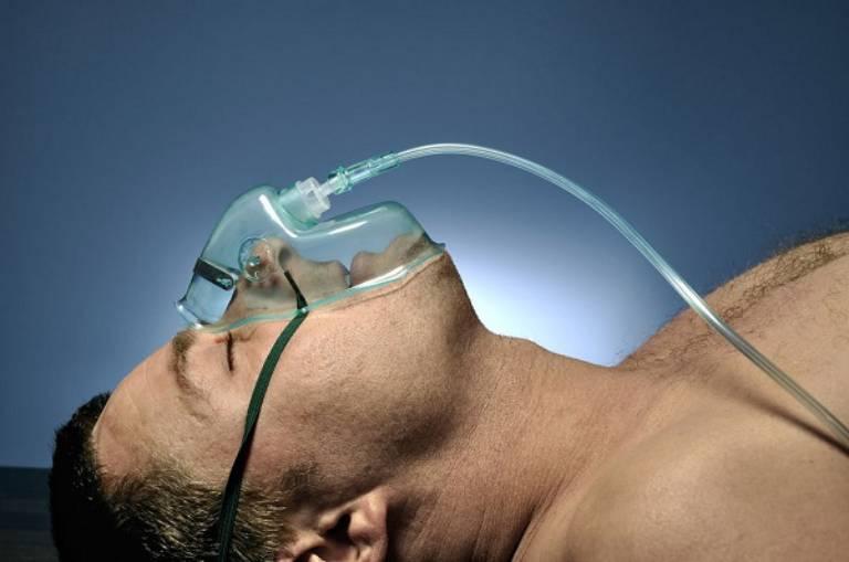 Tình trạng ngộ độc thuốc tê thường chỉ xảy ra các triệu chứng ở hệ thần kinh trung ương và hệ tim mạch, không có các biểu hiện về da
