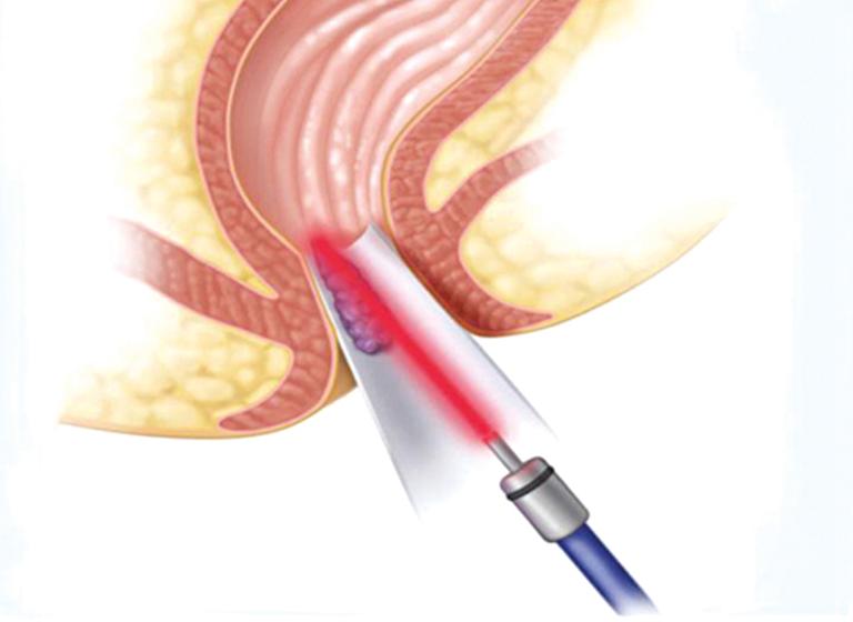Tia laser tiến hành chia nhỏ các búi trĩ và làm bốc hơi các búi trĩ chứa nước