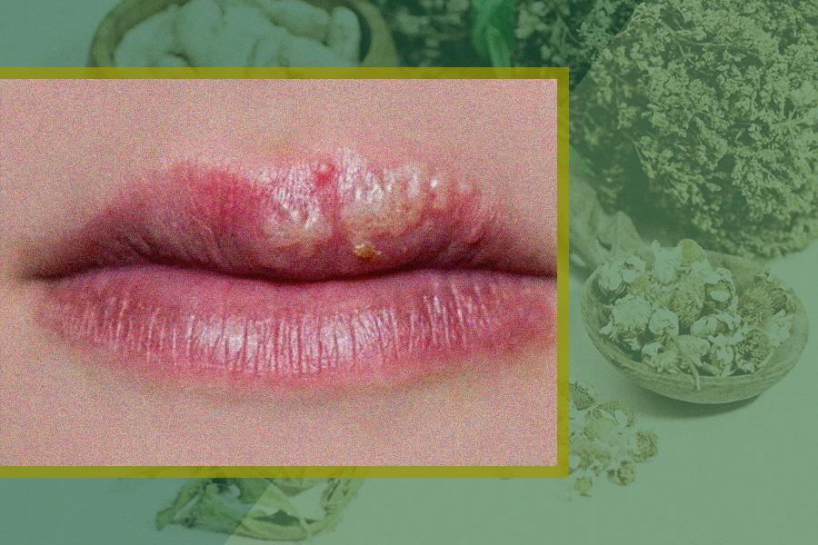 điều trị bệnh chàm môi bằng thảo dược đông y