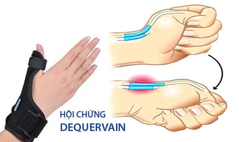 Hội chứng De Quervain thường gặp ở phụ nữ mang thai, người bị thấp khớp, tiểu đường