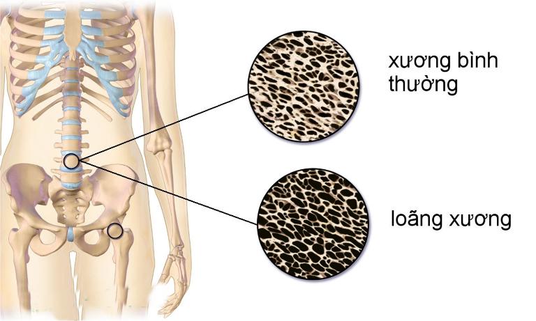 Loãng xương là tình trạng xương bị suy giảm về chất lượng lẫn khối lượng.