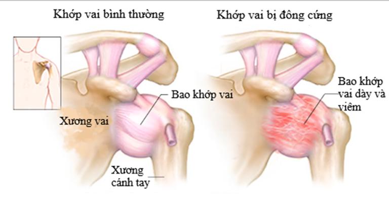 Khớp vai bị đông cứng do bệnh viêm quanh khớp vai