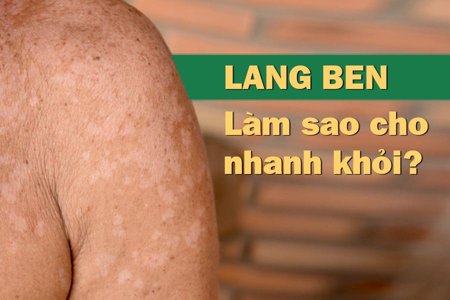 Lang ben và cách chữa trị tận gốc chuyên gia khuyên dùng