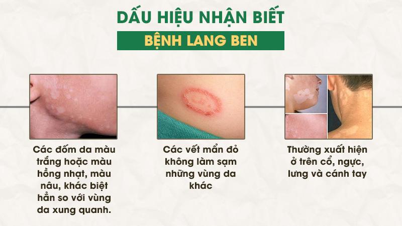 Một số dấu hiệu nhận biết bệnh lang ben