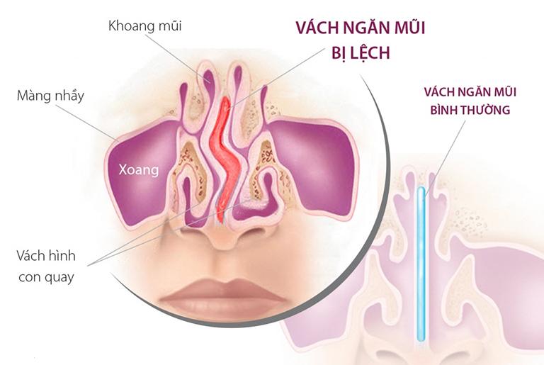 Lệch vách ngăn mũi là tình trạng vách ngăn mũi bị vẹo sang một bên, phát triển không bình thường