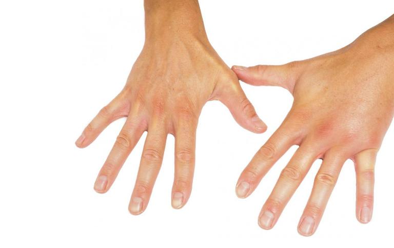 Xơ cứng bì là tình trạng da dầy lên và khô cứng. Bệnh gây ra nhiều ảnh hưởng đến các cơ quan nội tạng.