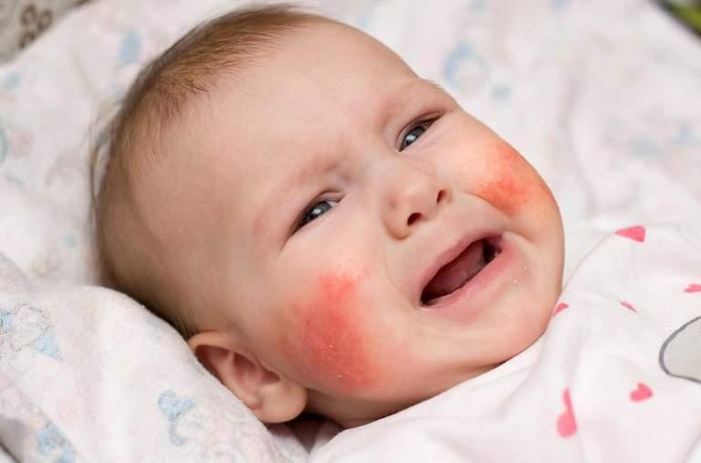 Dấu hiệu dị ứng ở trẻ