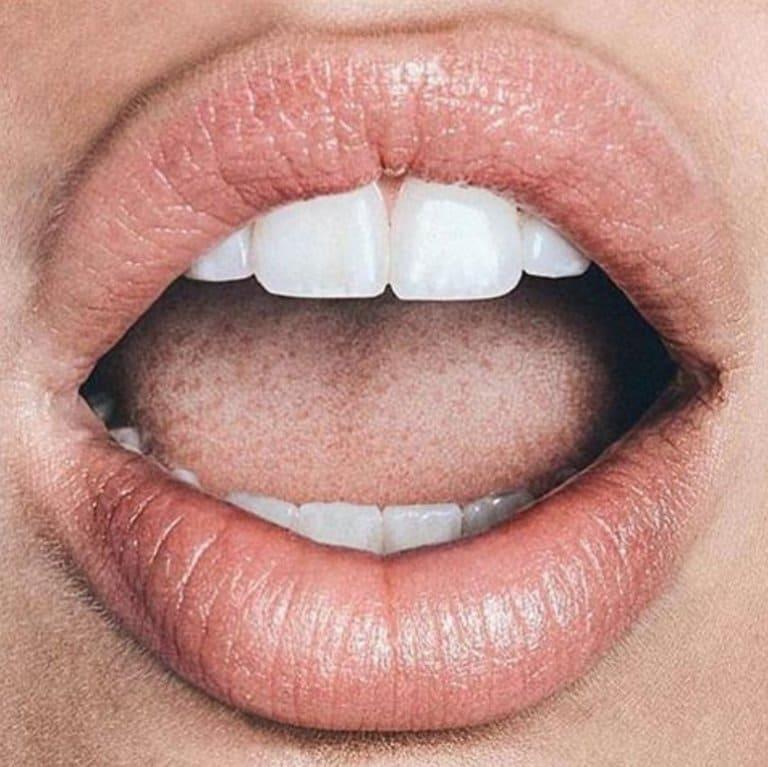 Hết viêm môi dị ứng nhưng môi vẫn thâm