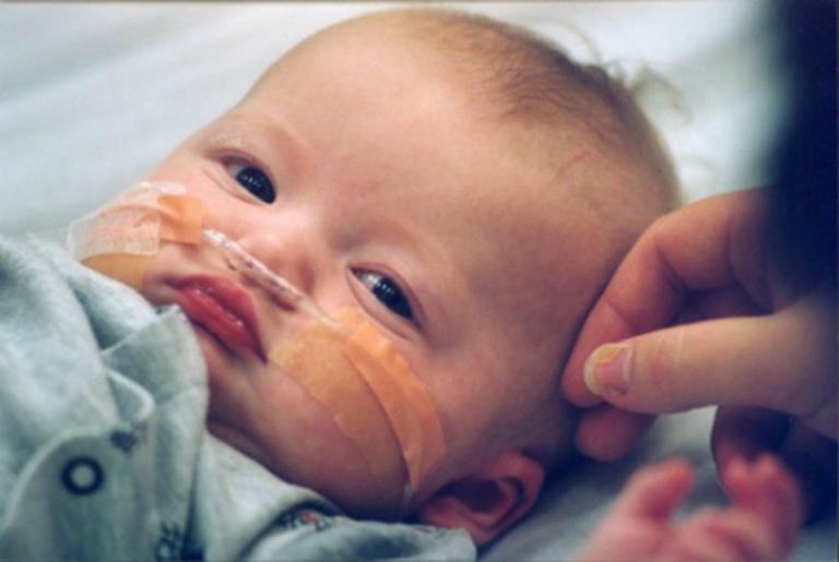 Khi bệnh tiêu chảy có dấu hiệu chuyển biến nặng, cha mẹ nhanh chóng đưa trẻ đi cấp cứu