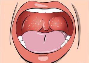 Nổi mụn trắng trong cổ họng có thể là dấu hiệu cảnh báo nhiều bệnh nguy hiểm