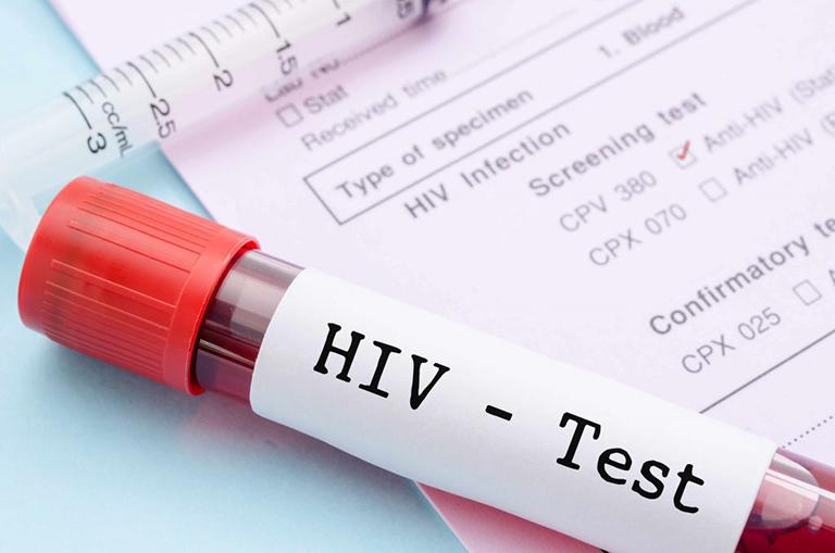 phát ban hiv