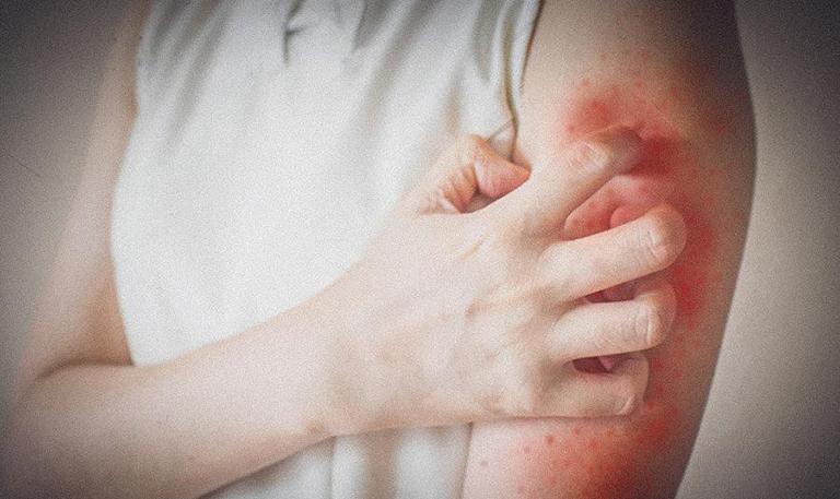 phát ban không sốt ở người lớn