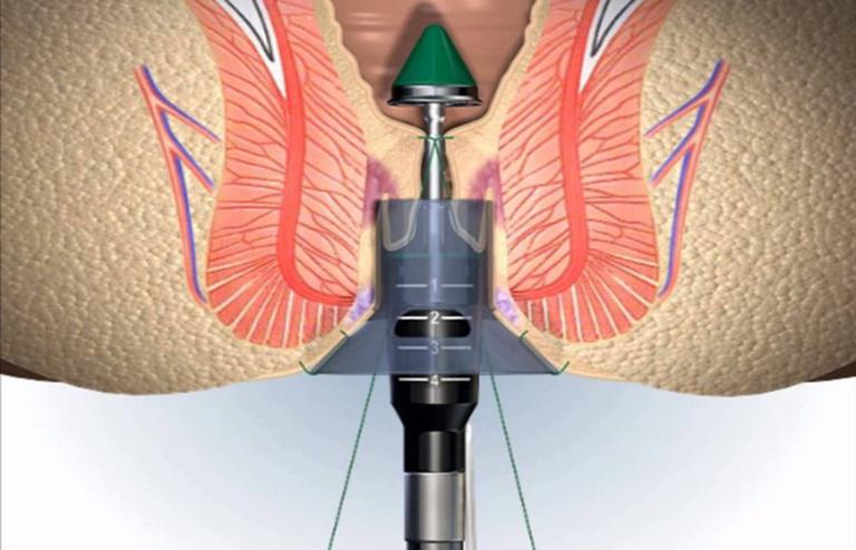 Cắt trĩ bằng phương pháp Longo giúp mang lại hiệu quả điều trị cao, giảm nguy cơ tái phát