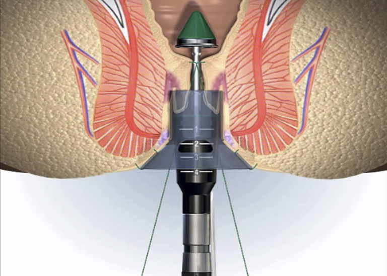 Phương pháp cắt trĩ Longo kết hợp đồng thời giữa máy cắt và khâu nối
