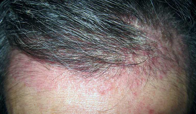 nguyên nhân khiến nam giới bị rụng tóc