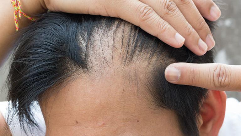 Rụng Tóc Ở Nam Giới - Dấu Hiệu Nhiều Bệnh Lý Đáng chú ý