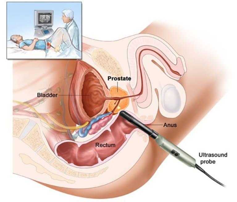 Phương pháp siêu âm qua đường trực tràng