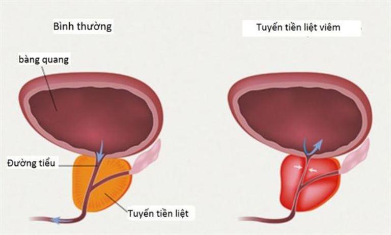 Chứng tiểu buốt ở nam giới cũng có thể xuất hiện do tuyến tiền liệt bị viêm