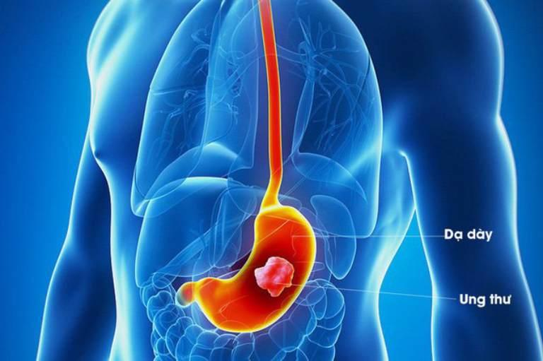Tiêu chảy liên tục được xem là triệu chứng sớm của các bệnh ung thư tiêu hóa