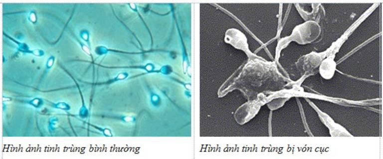 Tinh trùng vón cục là hiện tượng thường gặp, có thể điều trị tại nhà