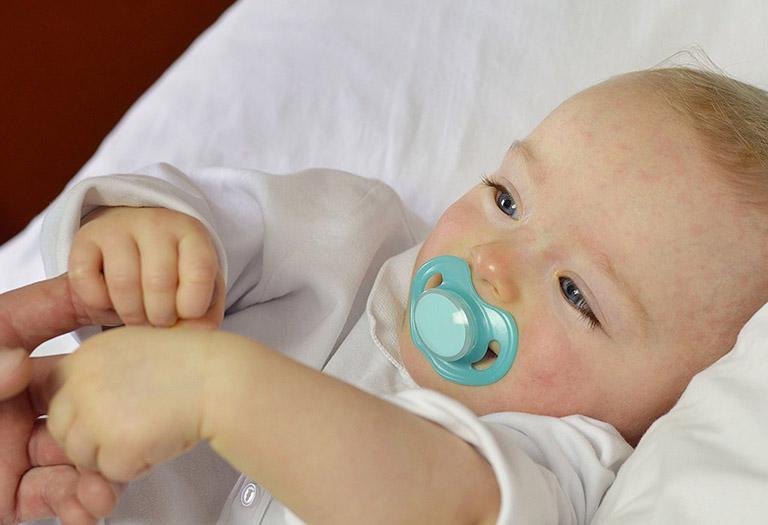 trẻ bị phát ban nhưng không sốt