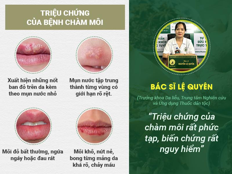 Triệu chứng của bệnh chàm môi