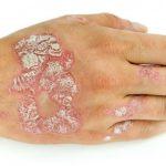 Vẩy nến là tình trạng da có nhiều tế bào chết xếp chồng lên nhau.