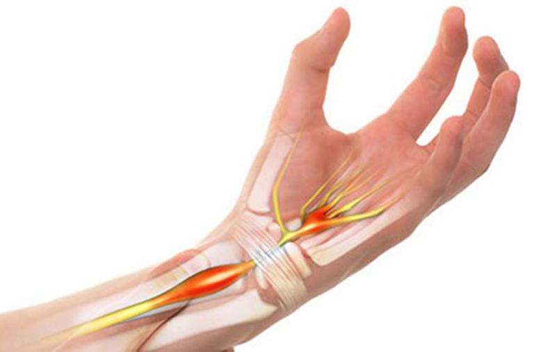 Viêm bao gân cổ tây gây ra tình trạng đau nhức khó chịu cho người bệnh