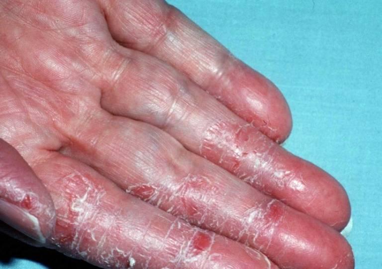 Viêm da do thường xuyên tiếp xúc với chất tẩy rửa, hóa chất độc hại