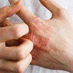 Viêm da tiếp xúc ở tay thường xảy ra khi tay tiếp xúc với chất gây dị ứng hoặc kim loại, chất tẩy rửa, hóa chất