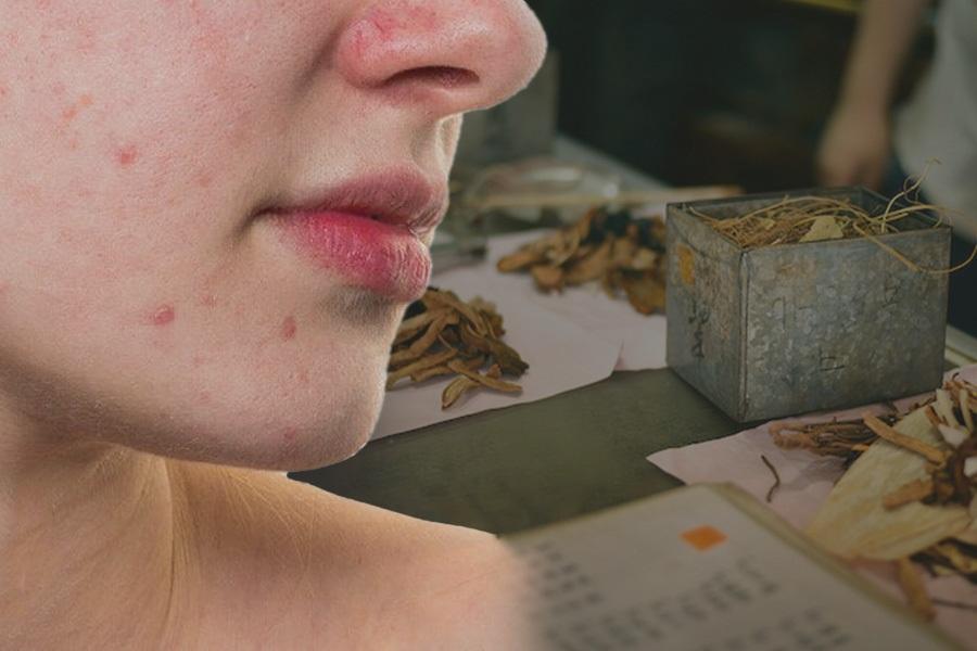 Viêm da tiết bã ở mặt tái phát khó chữa và giải pháp vàng từ Đông y