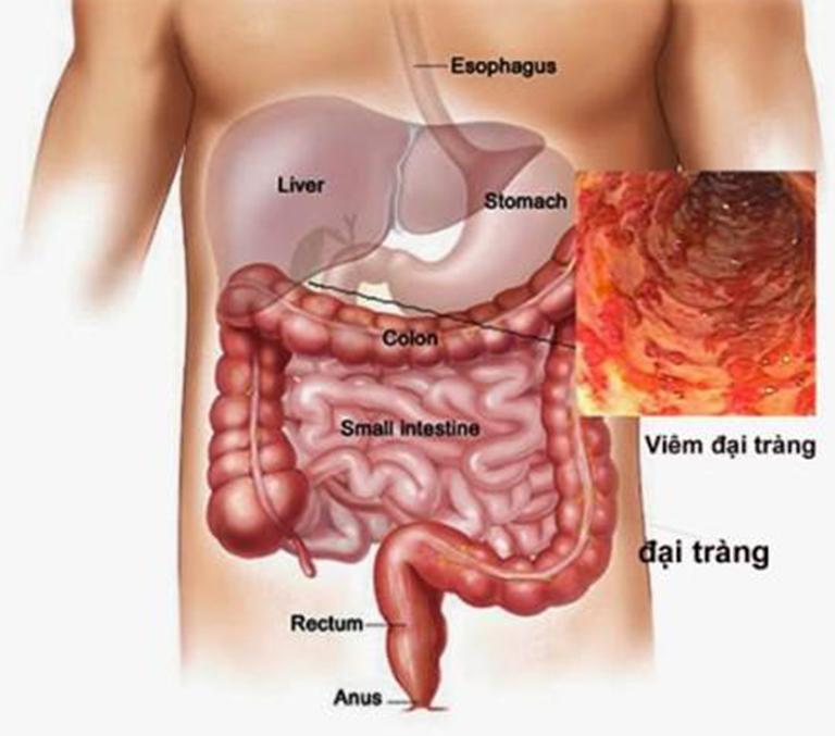 Đau bụng trên rốn là tiệu chứng thường gặp của bệnh viêm tá tràng