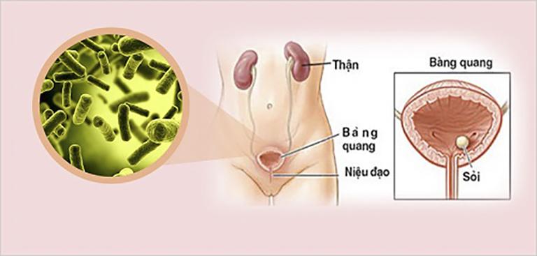 Viêm đường tiết niệu là căn bênh viêm nhiễm xảy ra khá phổ biến có thể gây ra triệu chứng đái dắt