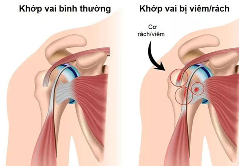 Khớp vai bị viêm rách dễ dẫn đến viêm quanh khớp vai