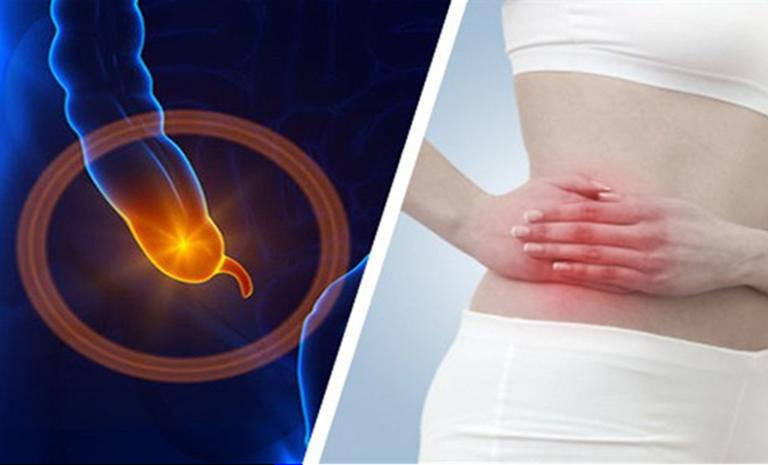 Viêm ruột thừa cũng là nguyên nhân gây ra tình trạng đau bụng đi ngoài sau khi ăn