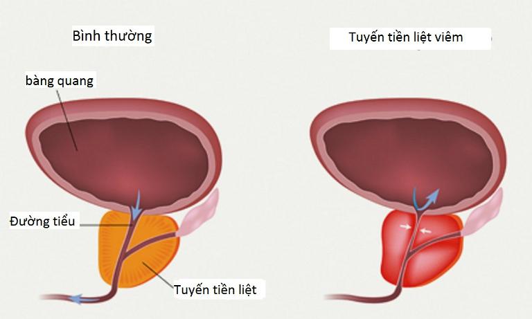 Triệu chứng của viêm tuyến tiền liệt là tiểu buốt, tiểu rắt, đau buốt khi xuất tinh, đau ở giữa bìu,...