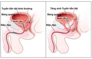 Hình ảnh của bệnh viêm tuyến tiền liệt