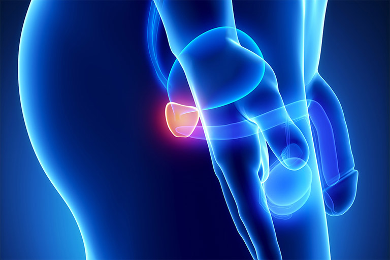 xạ trị ung thư tuyến tiền liệt