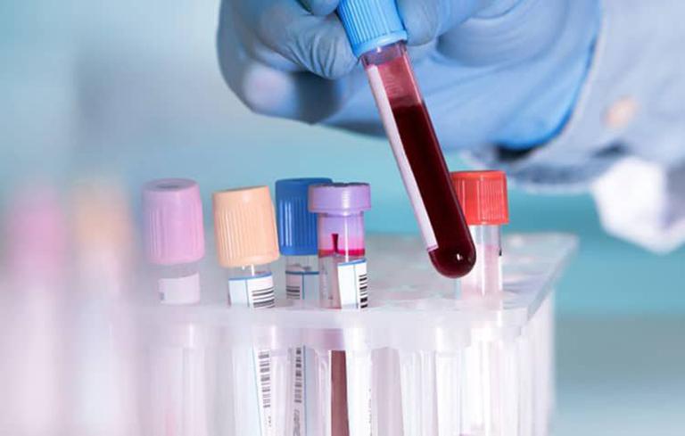 Xét nghiệm máu giúp chẩn đoán chính xác viêm mao mạch dị ứng
