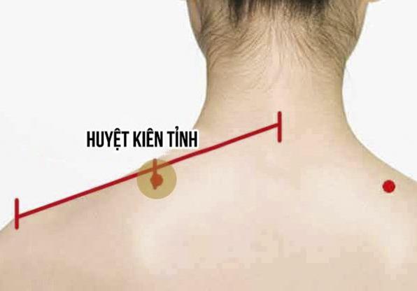 Điều trị bệnh viêm khớp vai theo y học cổ truyền bằng phương pháp bấm huyệt