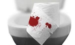 Giai đoạn 1 của bệnh trĩ thường xuất hiện tình trạng đi ngoài ra máu
