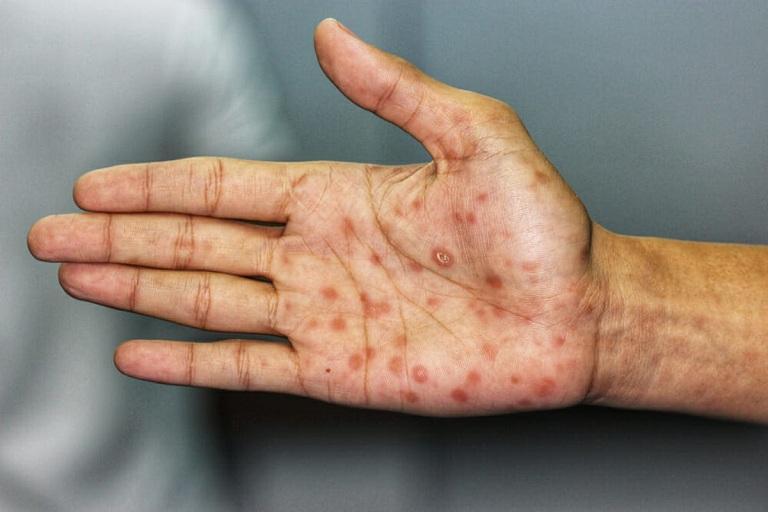Bệnh giang mai có gây ngứa không?